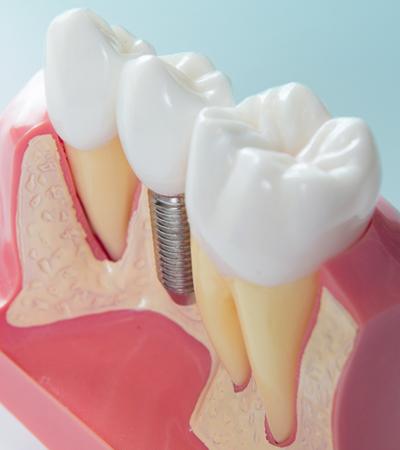Dental Implants Austin Dental Works