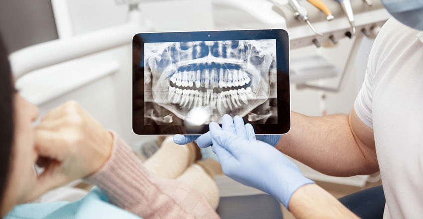 advantages-of-dental-implants