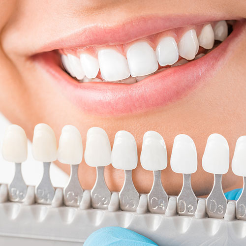 Do-Porcelain-Veneers-Cost